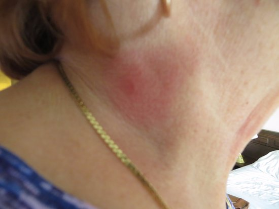 Sand Pebbles Inn: the Bite on my sisters neck she got overnight
