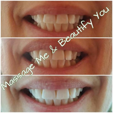 Whakatane, New Zealand: Teeth Whitening