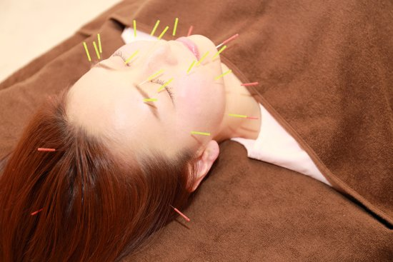Matsudo, Japan: Cosmetic Acupuncture 美容鍼