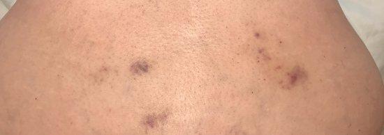 Peachtree City, GA: Massage Bruising
