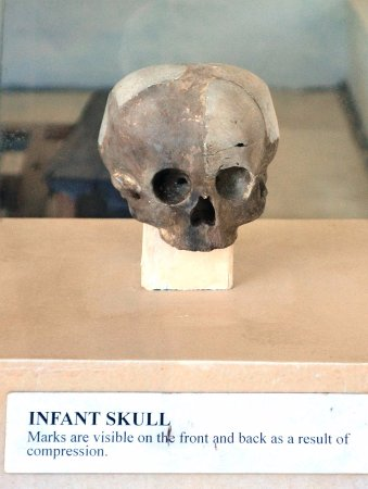 Balangay Shrine Museum: Skull with signs of cranial deformation