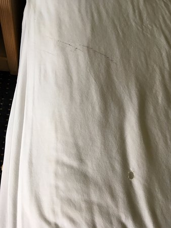 Americas Best Value Inn & Suites: The grease and cigarette burn holes