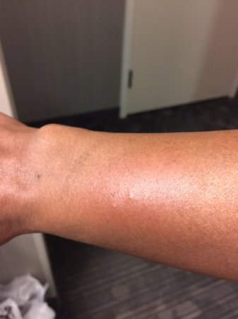 Embassy Suites by Hilton Detroit Southfield: Bite marks on my wrist.