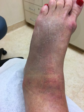 Glaslough, İrlanda: This is the injury on Wednesday