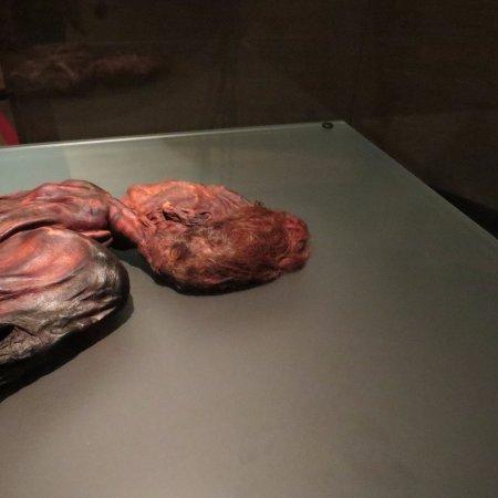 National Museum of Ireland - Archaeology: Clonycavan man