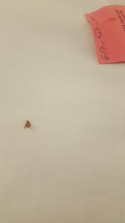 Doubletree By Hilton - Times Square South: THE BED BUG I FOUND