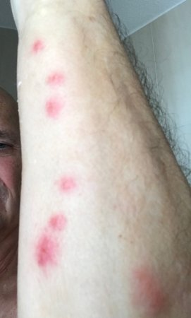 Hotel Moliere: Bed bugs