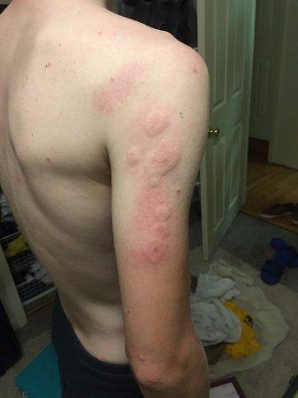 Negaunee, MI: Bed bug bites