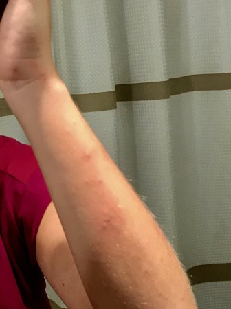 Atlanta Marriott Buckhead Hotel & Conference Center: Bed bug bites