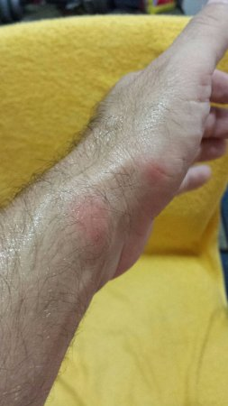 Red Roof Inn & Suites Atlantic City: bed bug bites from room.