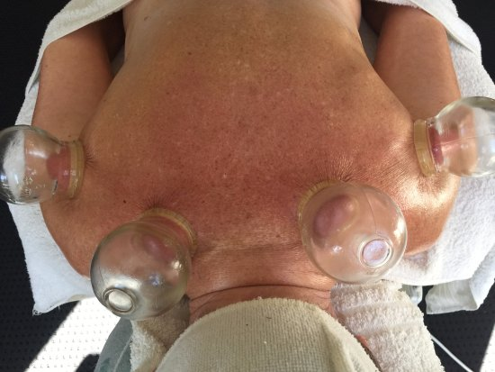 Coolum Beach, Australië: Upper Body Stress, Cupping of the Rotator Cuff and the Levator Scap Muscles. Cupping Changes Liv
