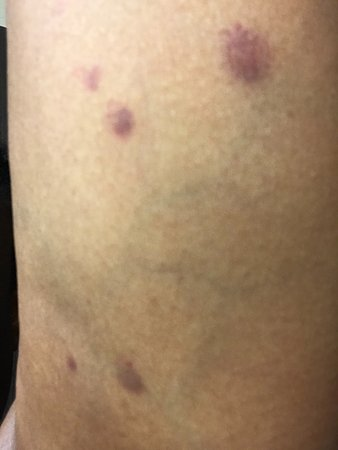 Ridgeland, Миссисипи: Bed bug bites underside of left arm. First time & don't want again!!