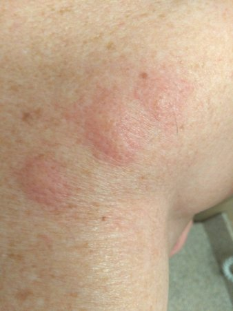 Days Inn - Vancouver Airport: Bed Bug Bites