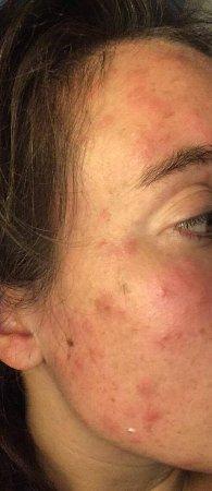 Turim Iberia Hotel: Bed Bugs bites