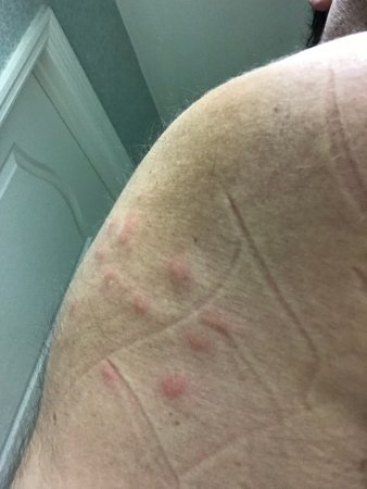 Caribe Royale Orlando: Bug bites inside our suite
