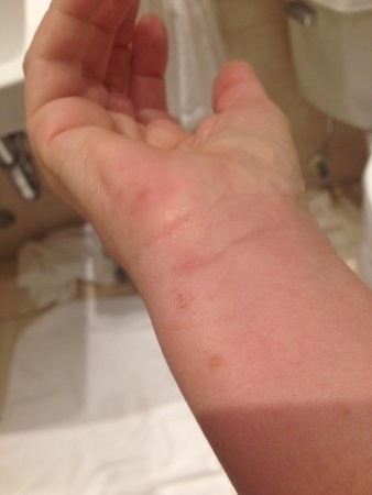 Wellington Hotel: My swollen wrist with bites due to bed bugs in room
