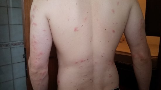 Skin Rash From Bed Bugs Picture Of Compay Hostel Montevideo