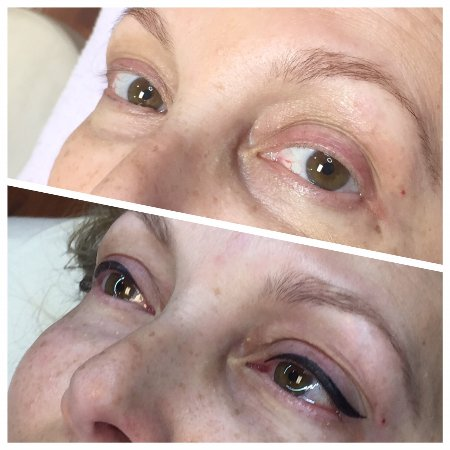 Permanent Makeup Eyeliner Before And After Picture Of Pure Skin