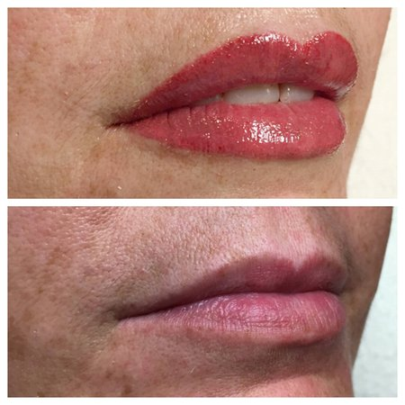 Permanent Makeup Lips Before And