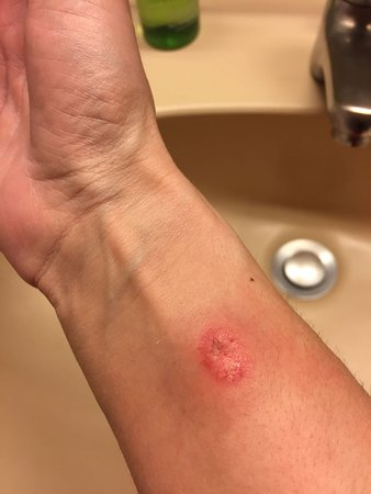 Harmony-Hotel Harfenwirt: Bed bugs bite