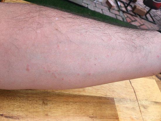 Vayakorn Inn: Bug bites from mattress