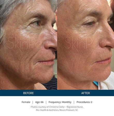 SkinPen Precision - only FDA approved Micro-Needling device