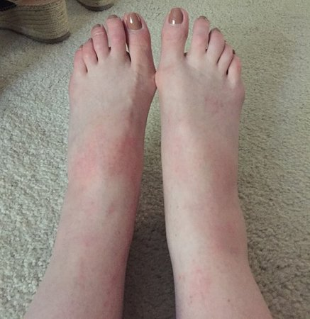 The Driskill: Feet swollen from bites received in room.