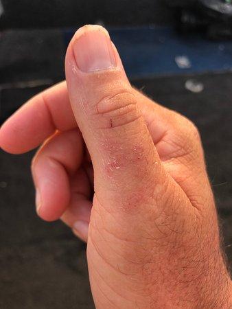 Melville Island, Australia: Battle Wounds