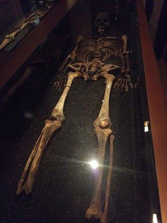 Musée Vasa: Ossada de um dos tripulantes do Vasa