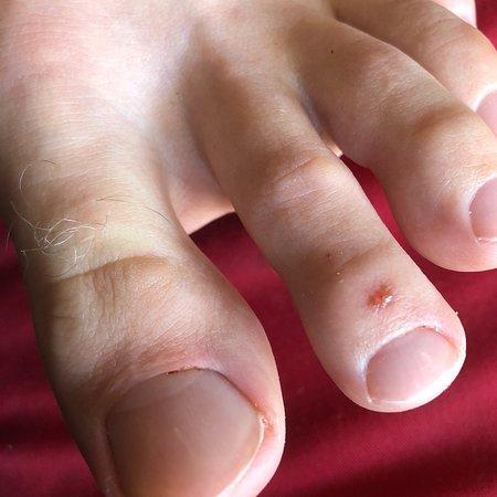 Putri Bali Spa: Pedicure wound and bleeding cuticles. I would skip their mani pedi services
