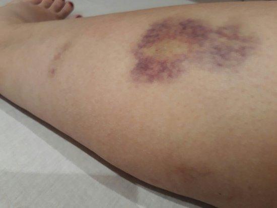 Novotel Lisboa: Perna de minha esposa, rocha e inchada após cair no buraco!