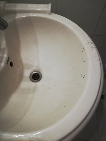 Dirty washbasin