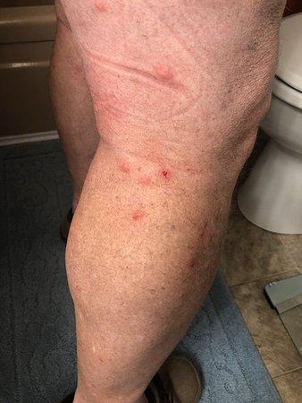 Quality Inn: bed bug bites