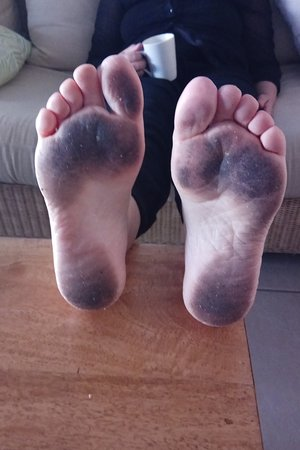 Sea Point on Trinity Beach: Filthy floor - wife's feet after walking around apartment for half a day