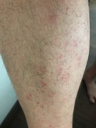 Amazing Everyone Has Different Reaction To Bed Bug Bites They Were Lamtechconsult Wood Chair Design Ideas Lamtechconsultcom