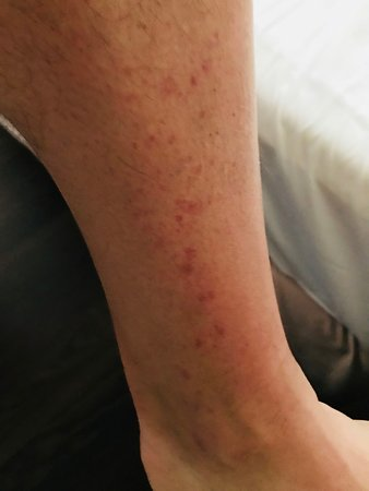 Groovy Everyone Has Different Reaction To Bed Bug Bites They Were Lamtechconsult Wood Chair Design Ideas Lamtechconsultcom