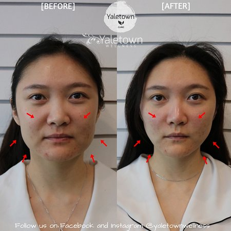 Latest Non- Surgical Thread Lifting - Picture of Yaletown