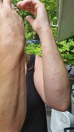 Carolina Motel: bed bug bites