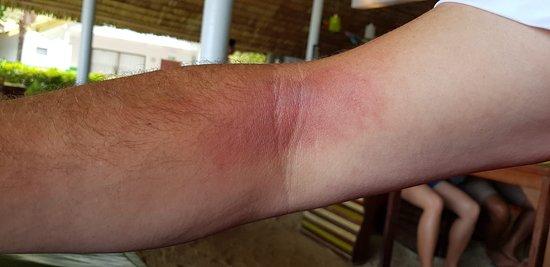 Phanom, Thái Lan: Acid burns for kayaks