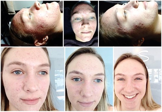 Full Pcaskin At Home Regime With 6 Chemical Peels And 8