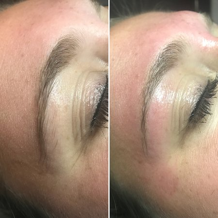 Full PCAskin® at home regime with 6 chemical peels and 8