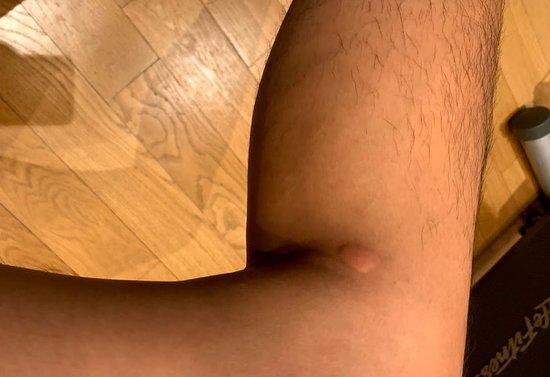 big bite on my left leg