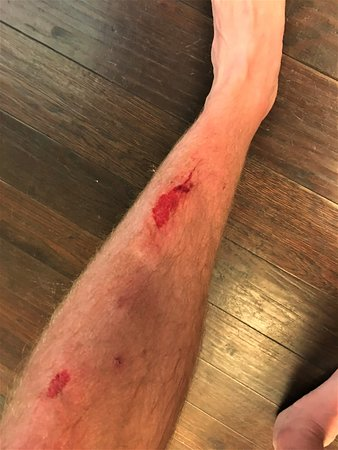 Viceroy Snowmass: Injury from fall over dark table