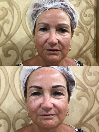 Eyebrow tattoo Phuket Patong Eyelash extension Cosmetic tattoo Microblading Patong Permanent makeup