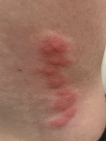 Bed bugs!!!