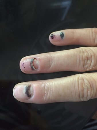 Costa Diadema: My fingernails are blue and now one is falling  off. Not very pretty for a female :-/