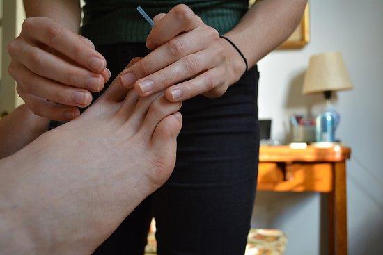 Hidden Root Acupuncture: Acupuncture