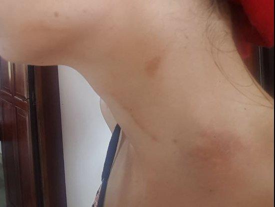 Vom Resort gemixtes Citronella-Öl auf Zimmer führt zu Hautreaktionen - an Hand schließlich zu Narben. Resort sorgt nicht für Arzt. Dringende Warnung vor diesem Resort!