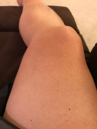 Clayton, NJ: Knee and thigh burned because of waitress carelessness and Omer does NOTHING to make it right with my group!