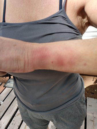 How I got bruises on my face and arms while visiting this casino.